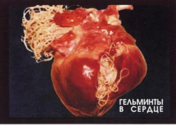 паразиты внутри человека симптомы